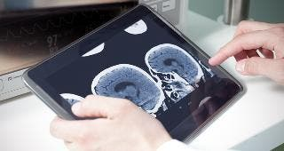 Doctor looking at brain scans © sfam_photo/Shutterstock.com