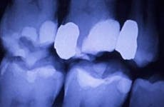 X-ray of a filled tooth