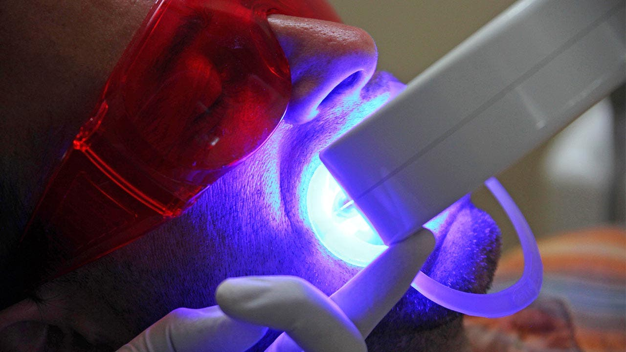 Patient undergoing whitening treatment