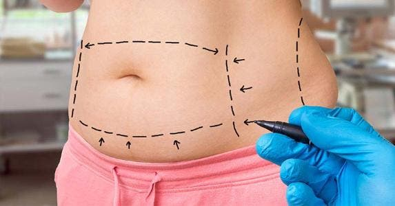 How Much Does A Tummy Tuck Cost