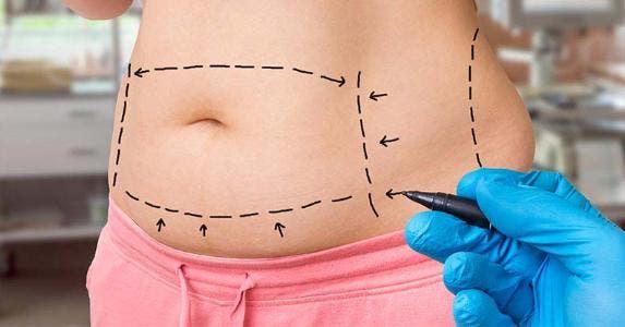 Stomach drawn for tummy tuck | andriano.cz/Shutterstock.com