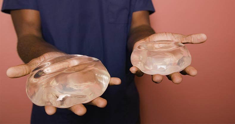 Breast implant failure rate
